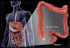 Obat penyakit Kanker Usus Tradisional